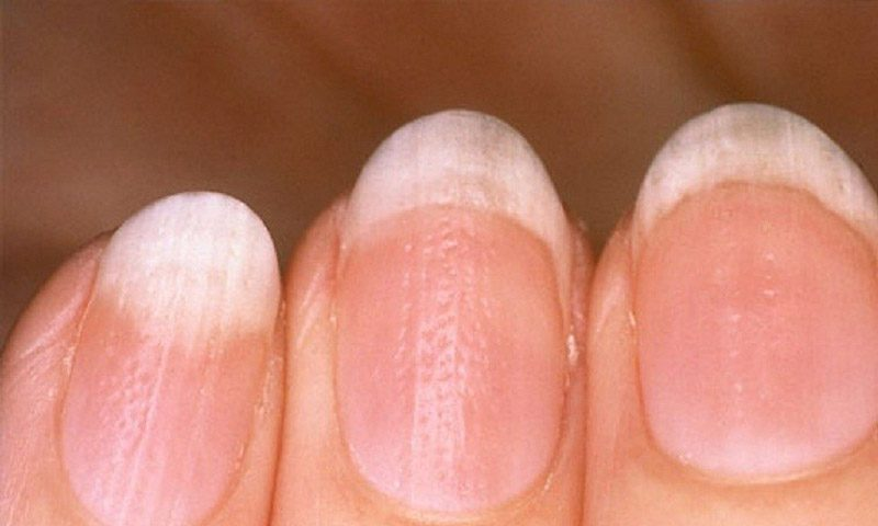الأظافر الغائرة Pitted Nails