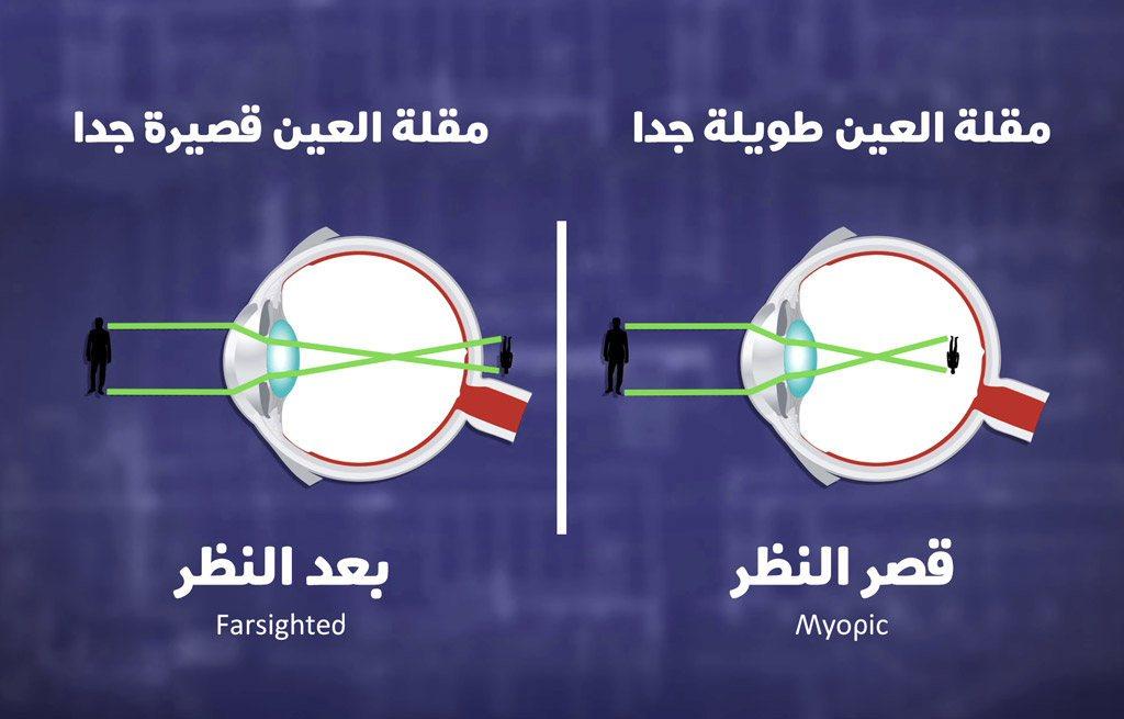 شرح تأثير شكل وطول مقلة العين في بعد النظر وقصر النظر