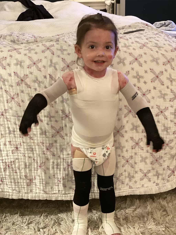 طفلة مصابة بمرض انحلال البشرة الفقاعي